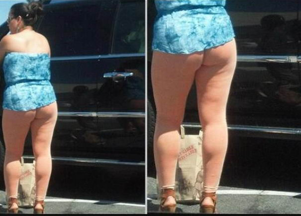 Baby Cellulite